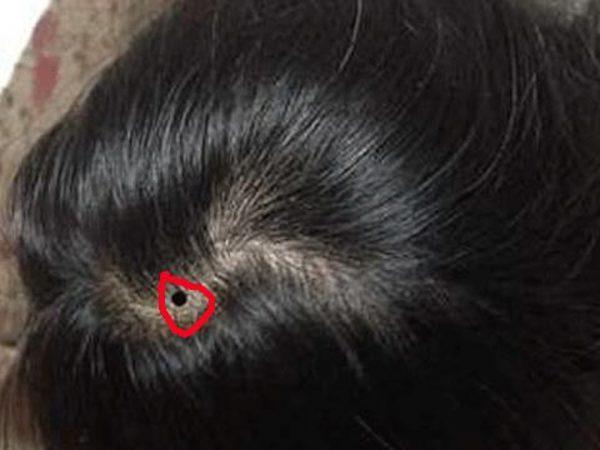 nốt ruồi mang lại may mắn cho phụ nữ