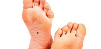 Xem tướng nốt ruồi ở chân