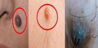 Nốt ruồi có lông là điềm tốt hay xấu?